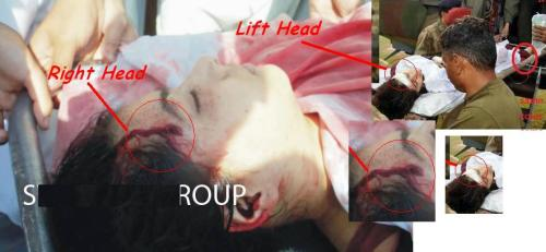 Malala injury....